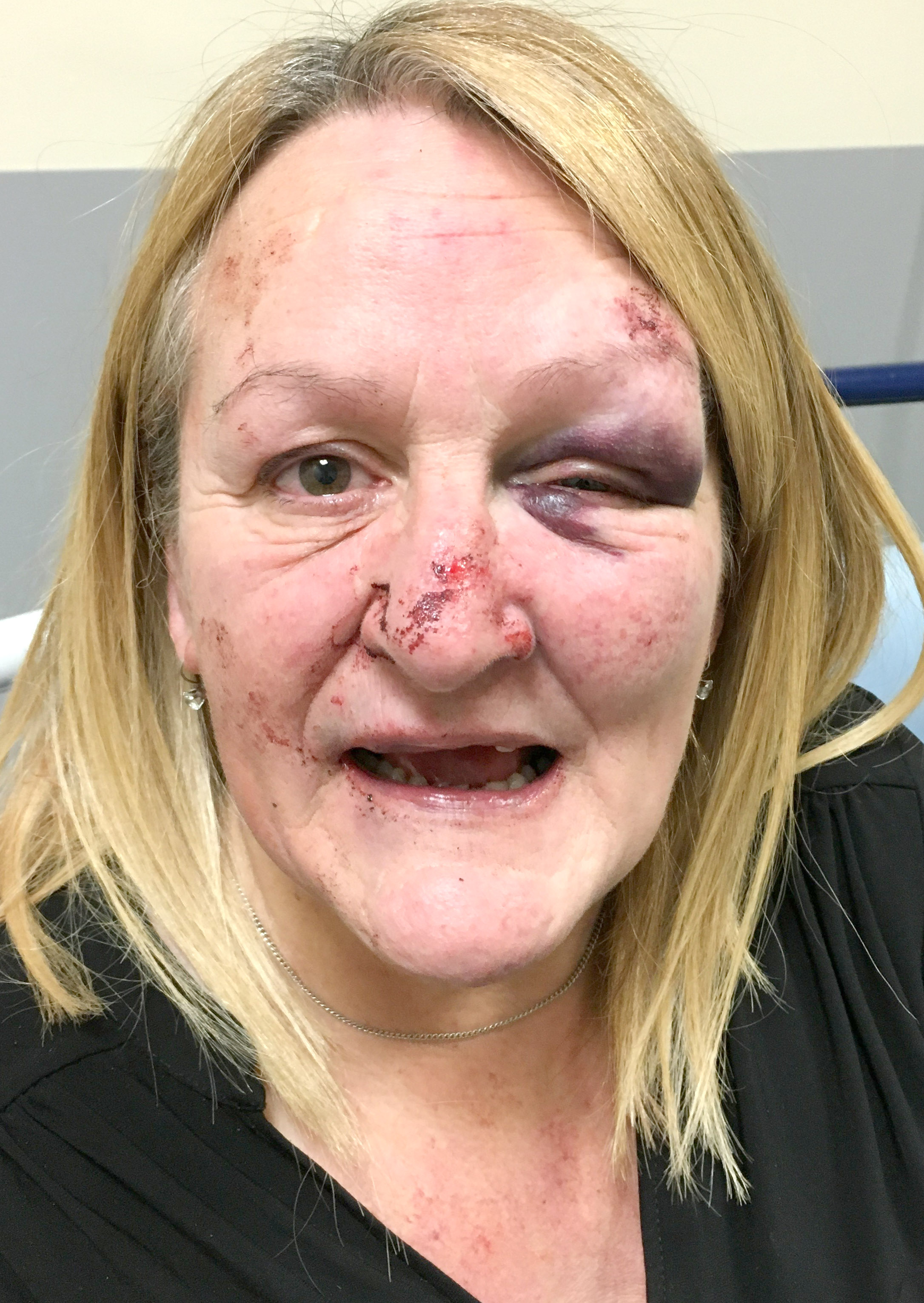 Unprovoked Attack on Two Women